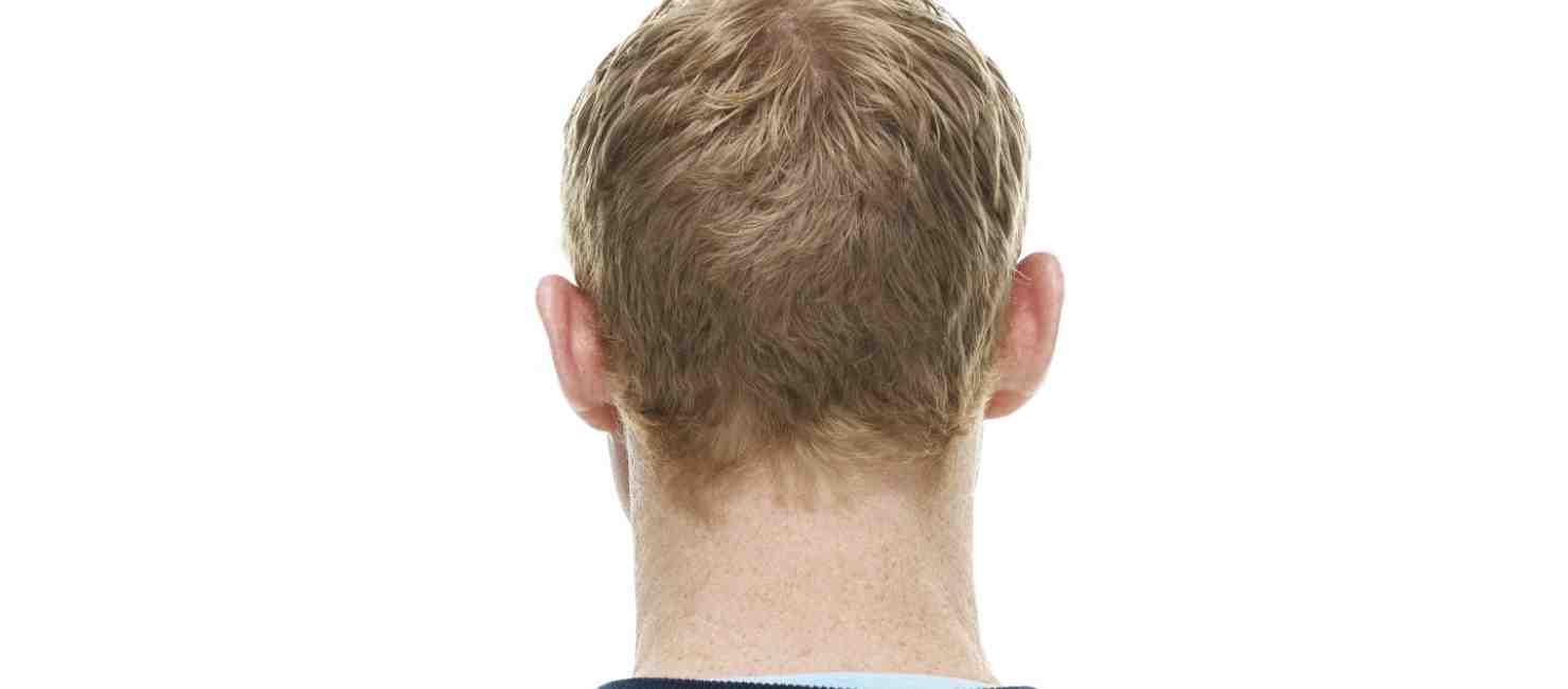 mans_back_caucasian.jpg